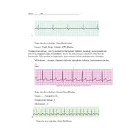 NR 340 EKG Interpretation Packet - Rhythm & Causes